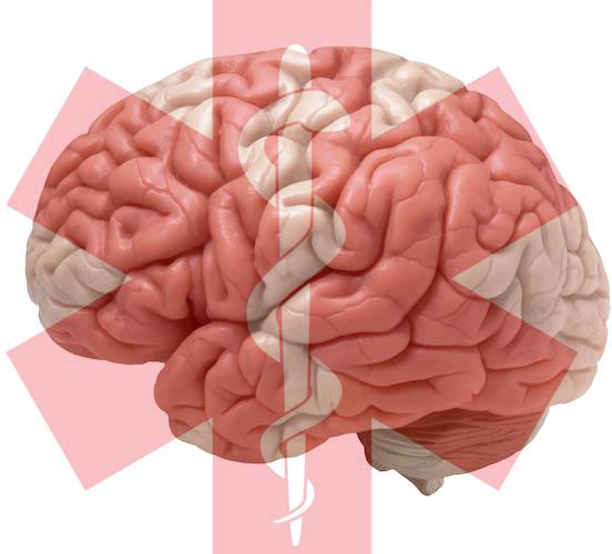 brain1 med symbol good