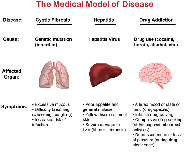 Disease-Model
