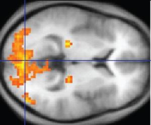fMRI Image (wikipedia.org)